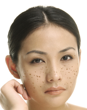色斑的预防方法
